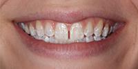 fotografia di una paziente felice