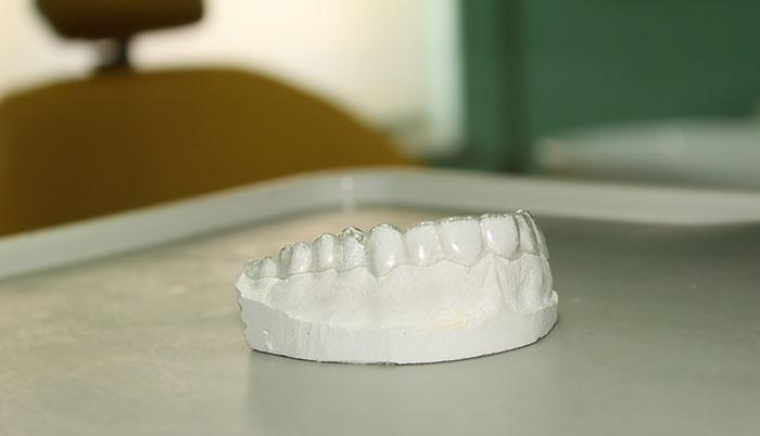 immagine relativa ad un bite utilizzato per curare le disfunzioni articolari