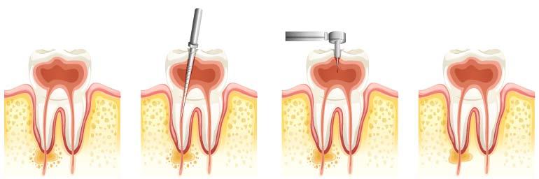 illustrazione che raffigura il trattamento ondodontico della devitalizzazione