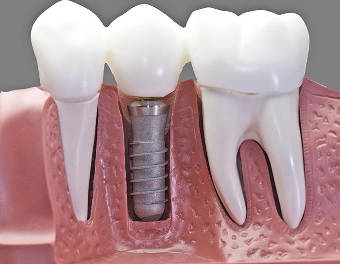immagine di un modello di impianto dentale - implantologia dentale