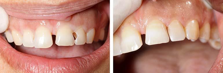 Esempio di odontoiatria conservativa estetica