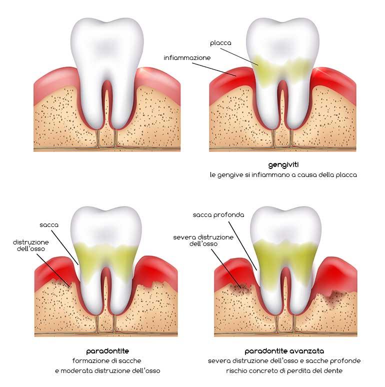 illustrazione che descrive le varie fasi della parodontite