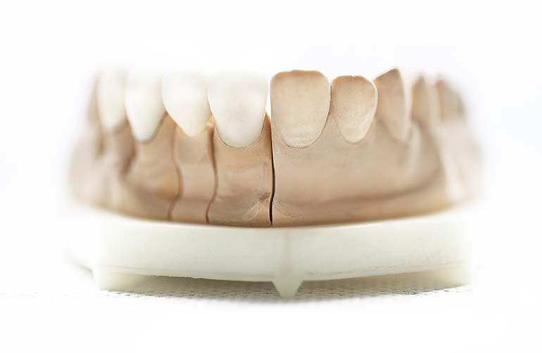 immagine di protesi dentarie