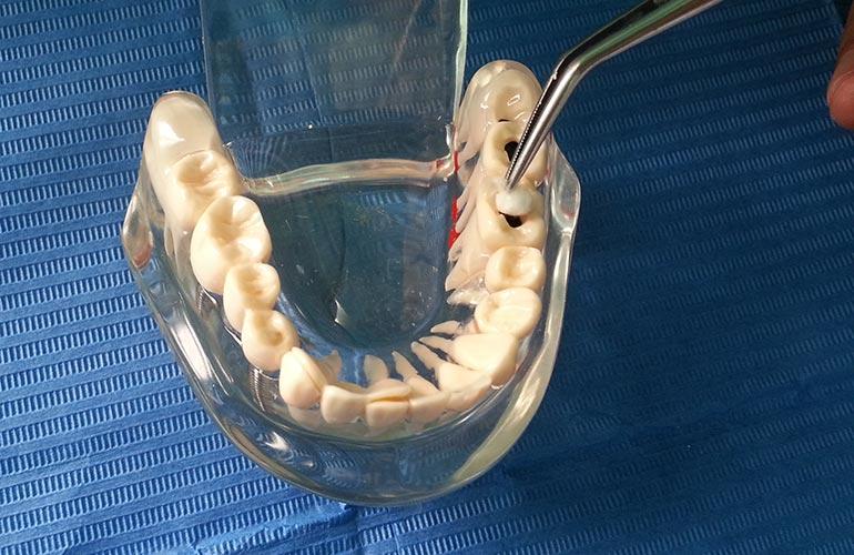 Applicazione di cotone idrofilo su un dente cariato